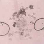 Vorticella micrograph [CC-BY-SA-3.0 Steve Cook]