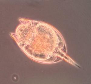 Euchlanis rotifer [CC-BY-SA-3.0]